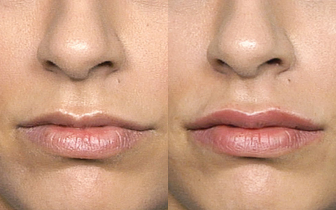 Dermal Fillers, lip augmentation