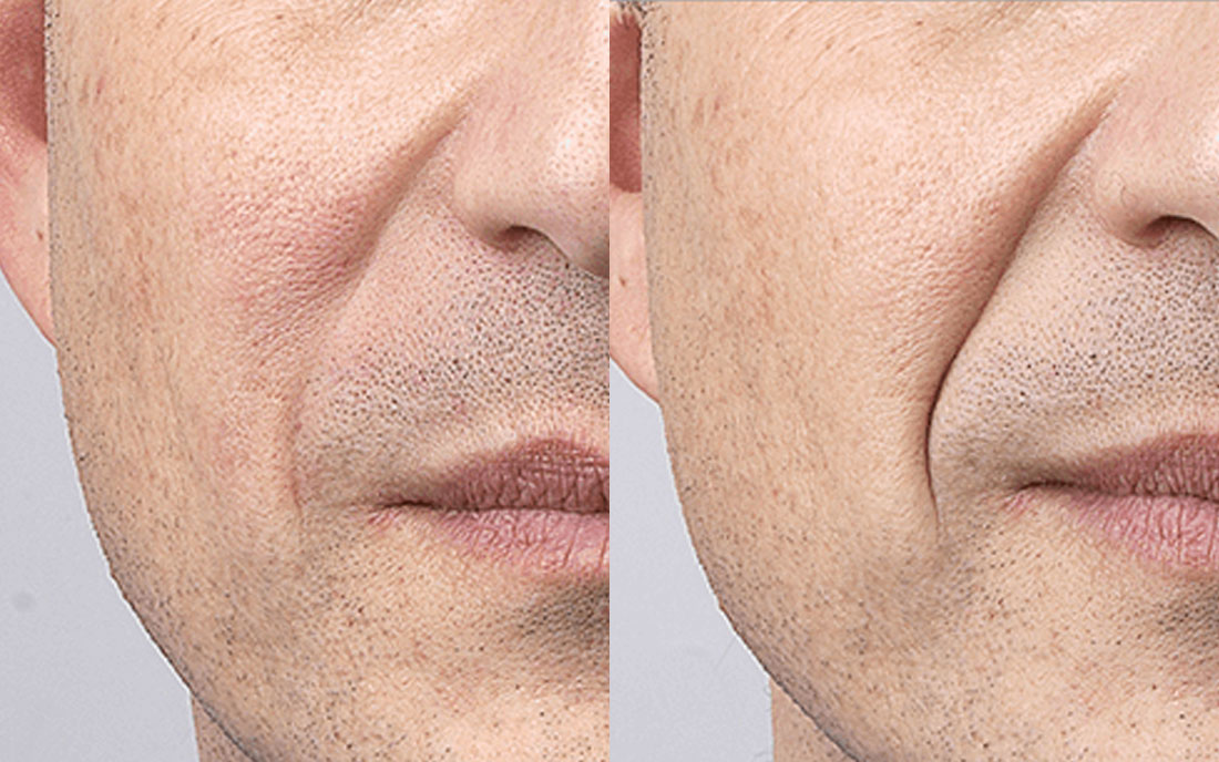 Dermal Fillers, nose to mouth treatment