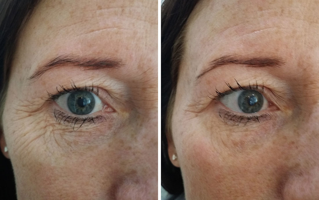 Viora Reaction, radiofrequency skin tightening, eyes