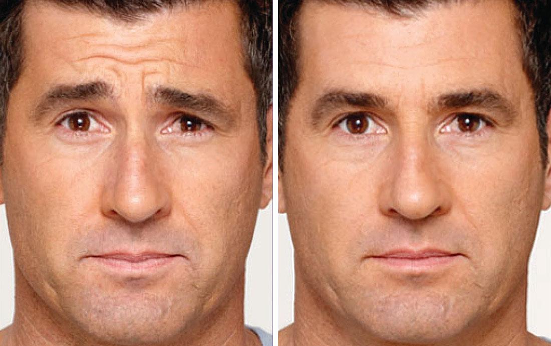 Botox, mens forehead treatment