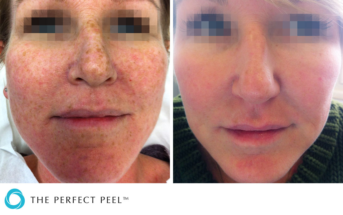 Chemical Peels, The Perfect Peel, before and after, sun damaged skin