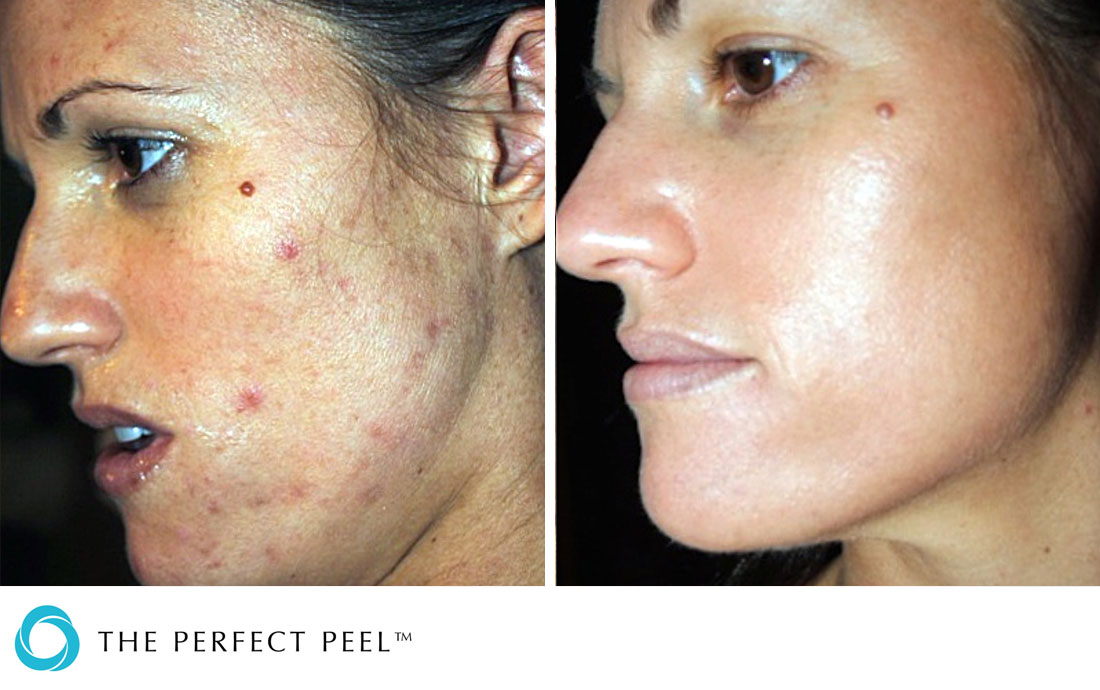 Chemical Peels, The Perfect Peel, before and after, acne blemished skin