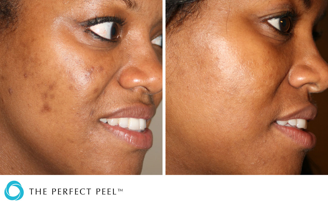 Chemical Peels, The Perfect Peel, before and after, fitzpatrick 5 skin