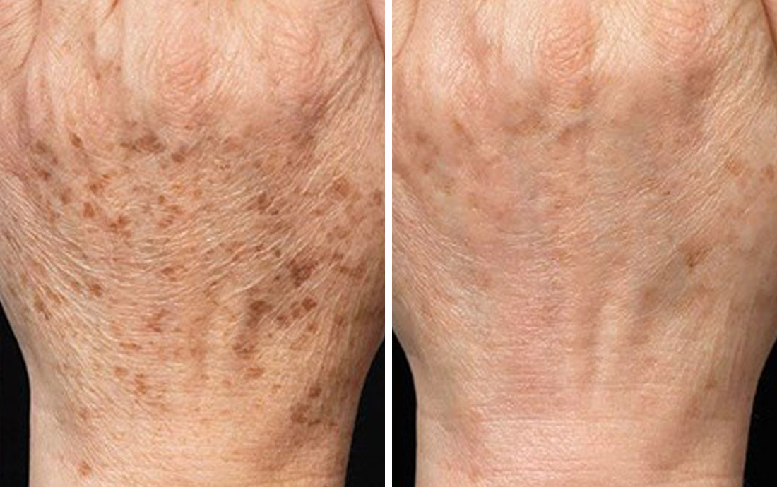 Cryotherapy using Cryopen for age spots on the hands