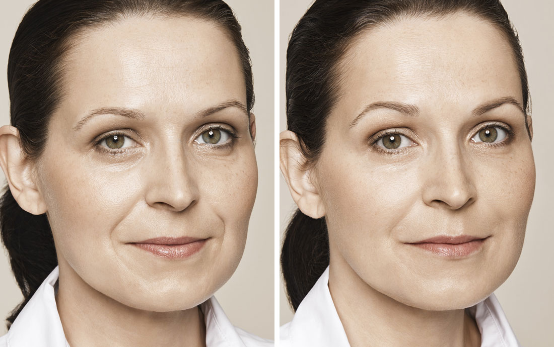 Delmal Fillers treatment, before and after
