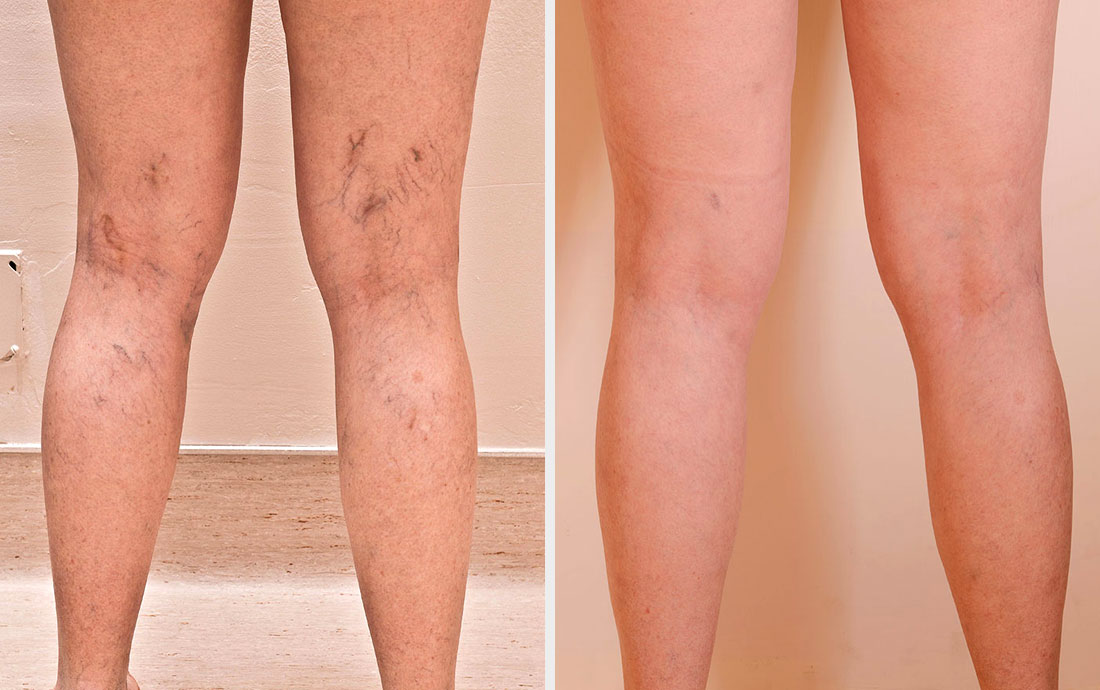 Injection Compression Sclerotherapy, leg vein removal, before and after