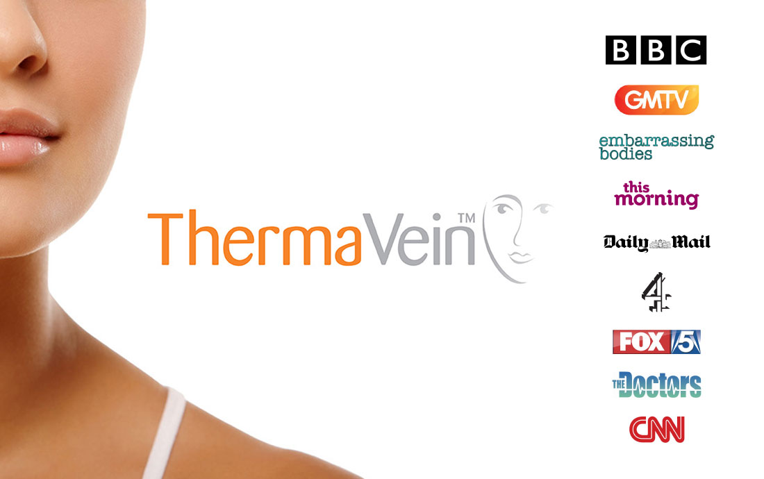 Thermavein, red vein removal