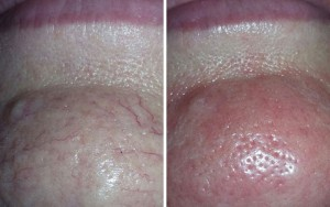 Thermavein, red vein removal, chin before and after