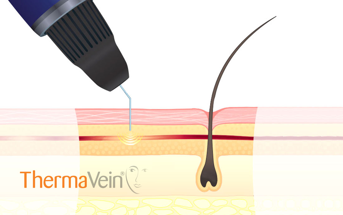 Thermavein, red vein removal, treatment diagram