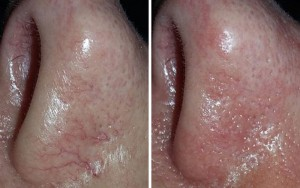 Thermavein, red vein removal, nose before and after