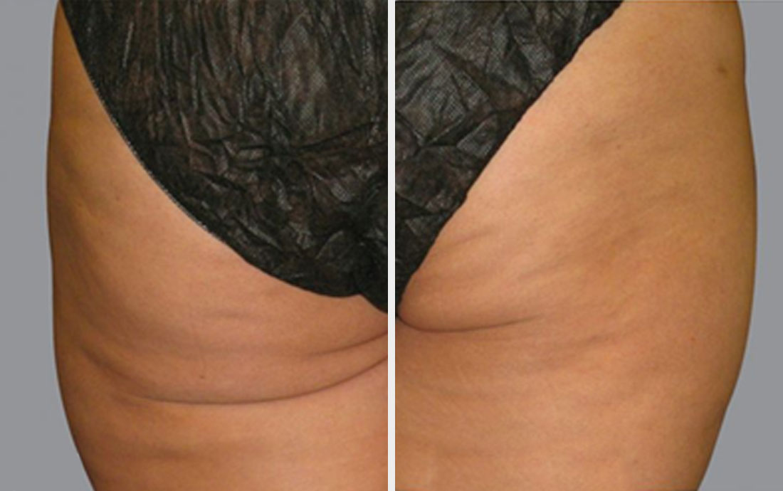 Viora Reaction, radiofrequency skin tightening, buttocks before and after, 6 treatments