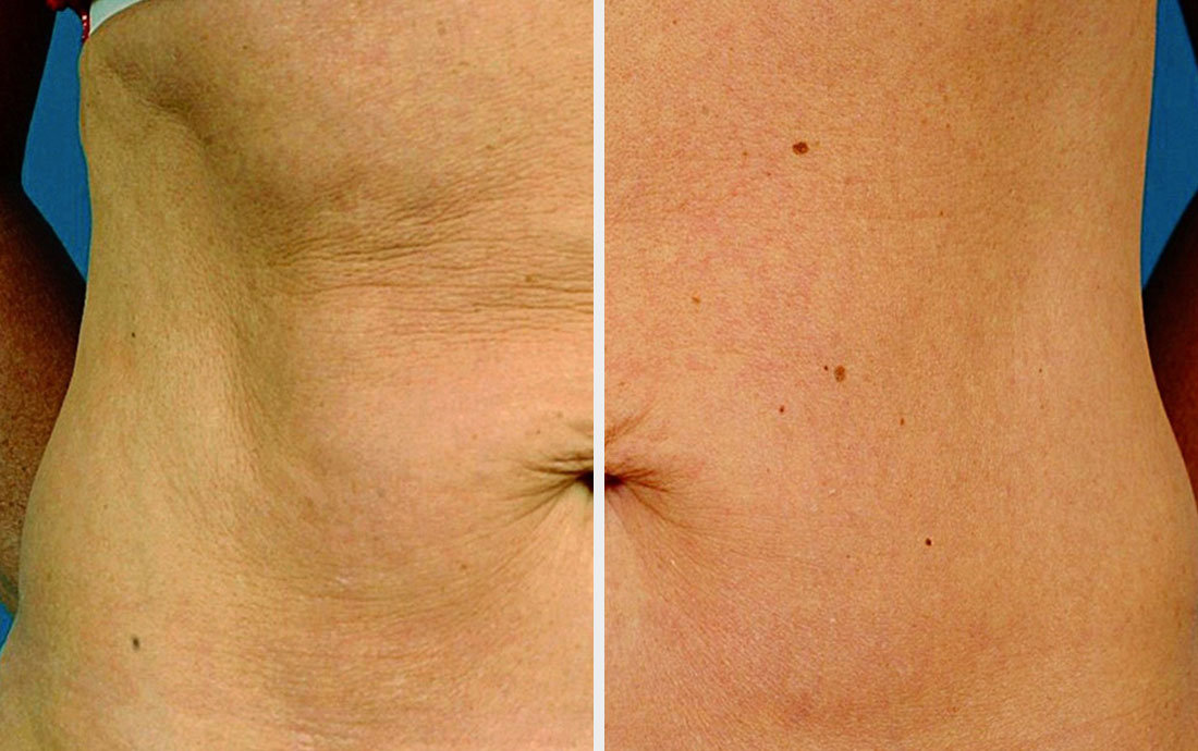 Viora Reaction, radiofrequency skin tightening, stomach, before and after, 4 treatments