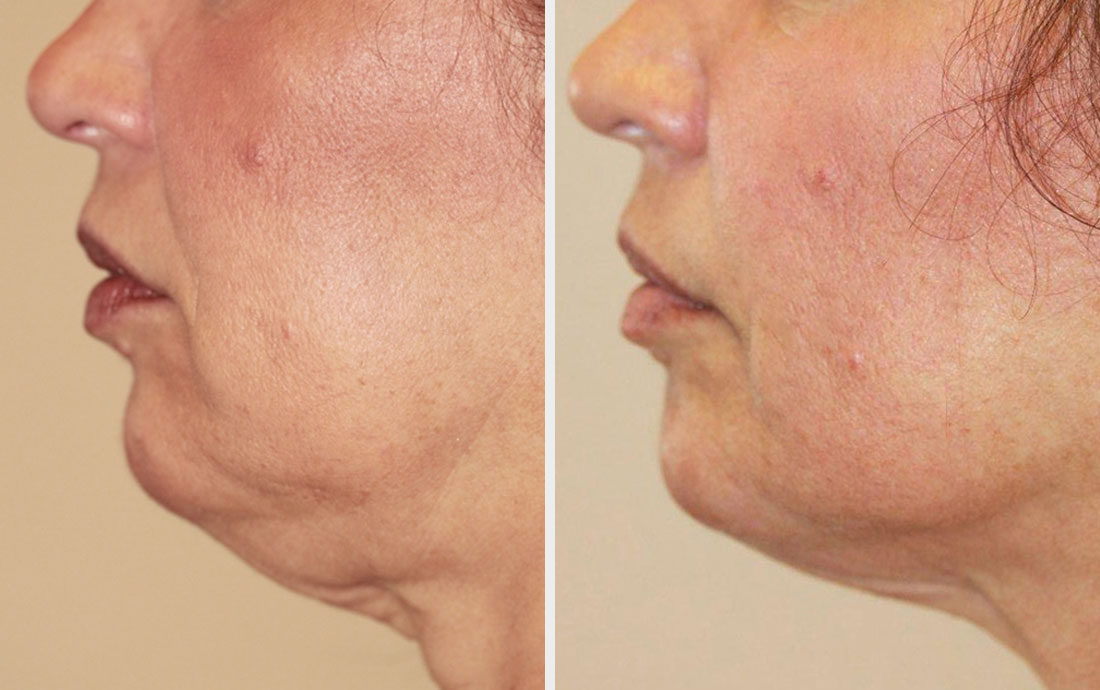 Viora Reaction, radiofrequency skin tightening, neck, before and after, 6 treatments