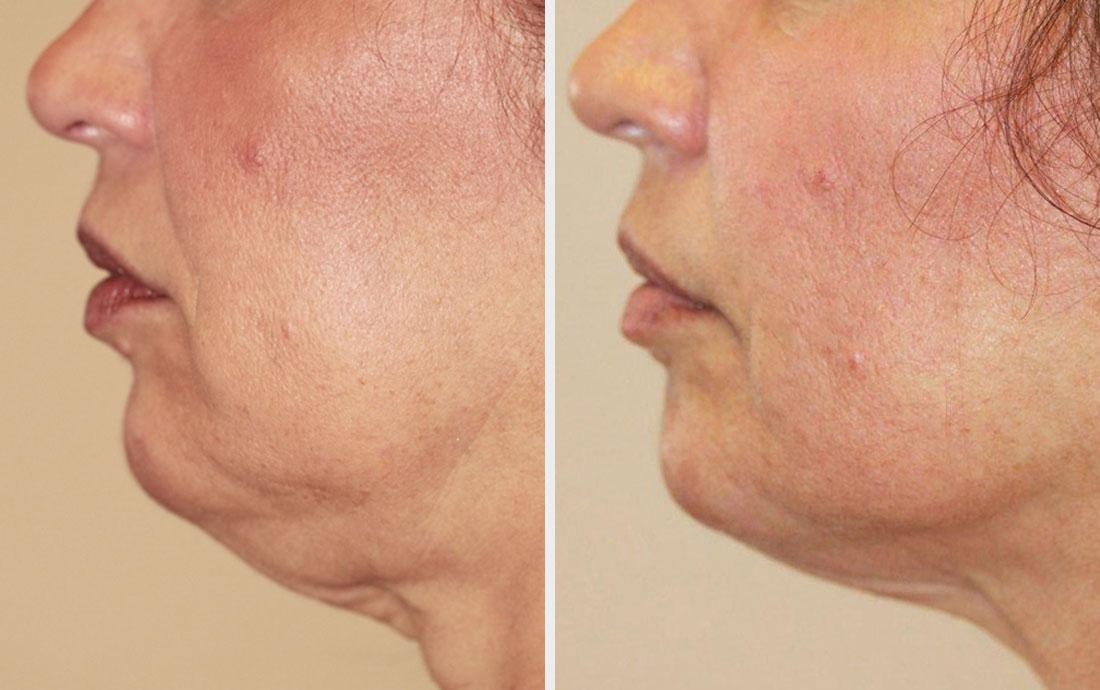 """Résultat de recherche d'images pour """"lipocavitation FACE before after"""""""