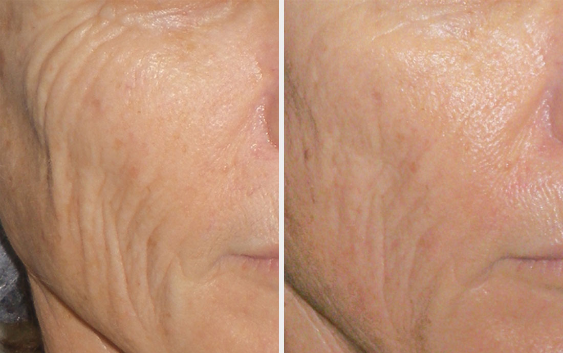 Viora Reaction, radiofrequency skin tightening, face, before and after, 4 treatments
