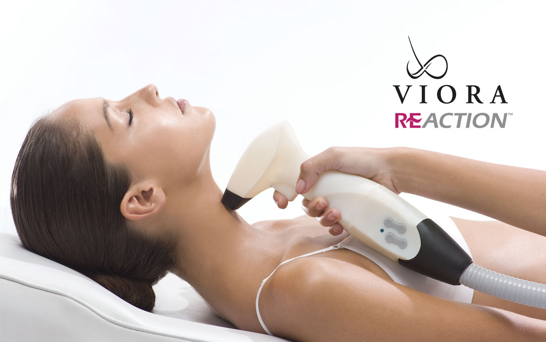 Viora Reaction, radiofrequency skin tightening, neck