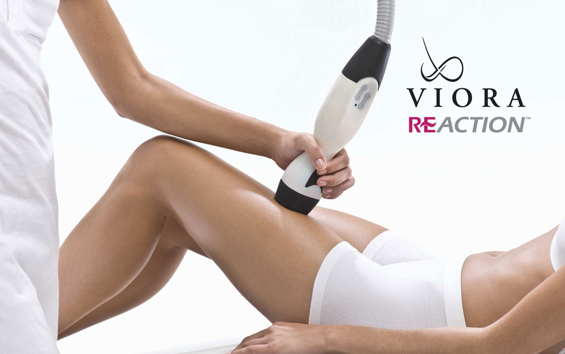 Viora Reaction, radiofrequency skin tightening, thighs