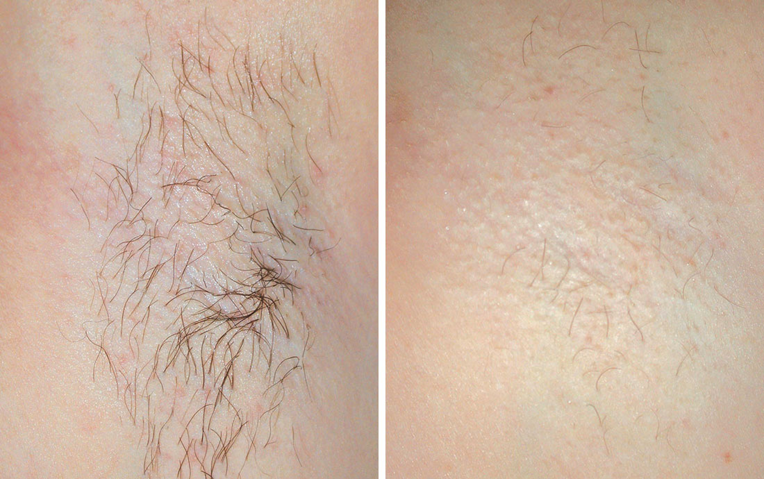 Viora V30 Laser Hair Removal, before and after, armpit