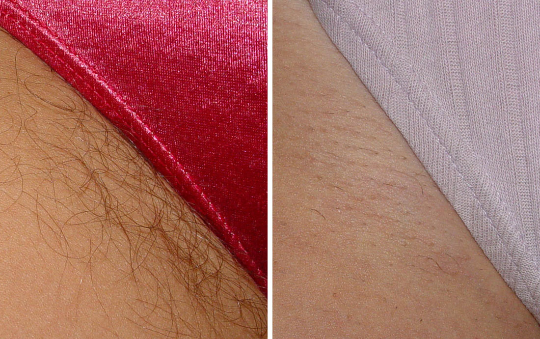 Viora V30 Laser Hair Removal, before and after, bikini line