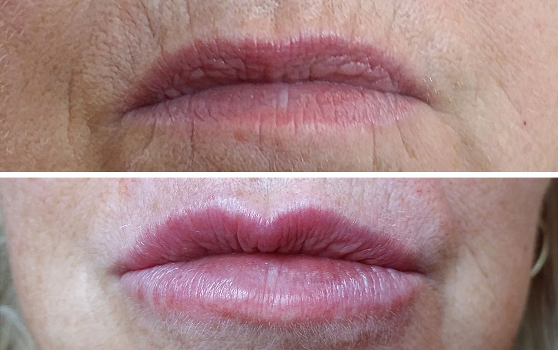 Delmal Fillers lip treatment, before and after