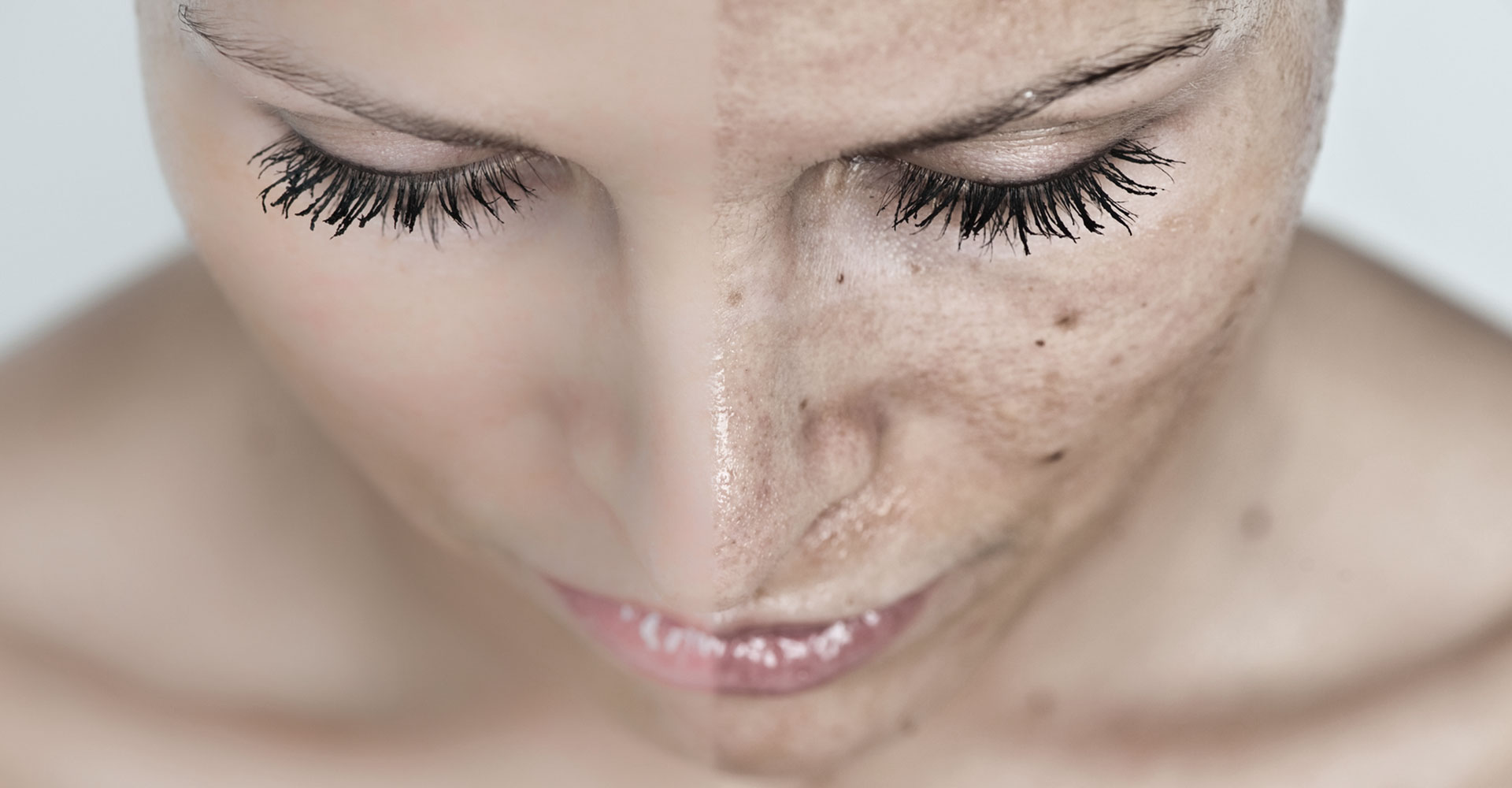 Have you got a dirty face? No, that's just my hyperpigmentation :( - Kelly Saynor
