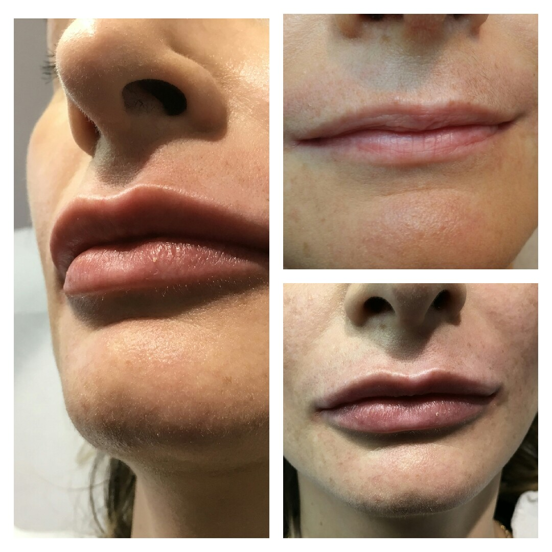 Renew Medical Aesthetics, 4D Lips, 2 stage lip augmentation treatment