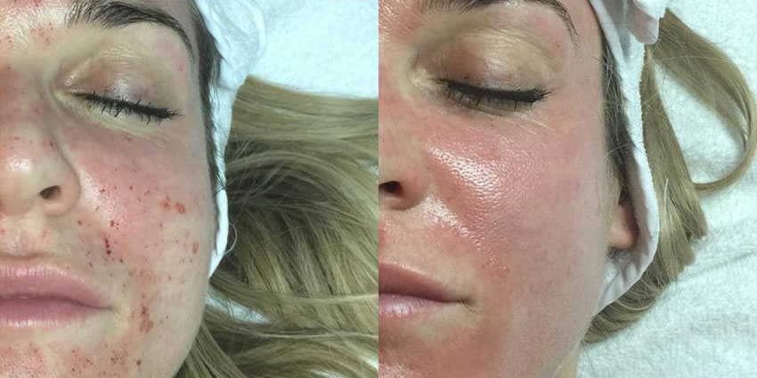 Renew Medical Aesthetics, Opera LED Light Therapy Mask, before and after results