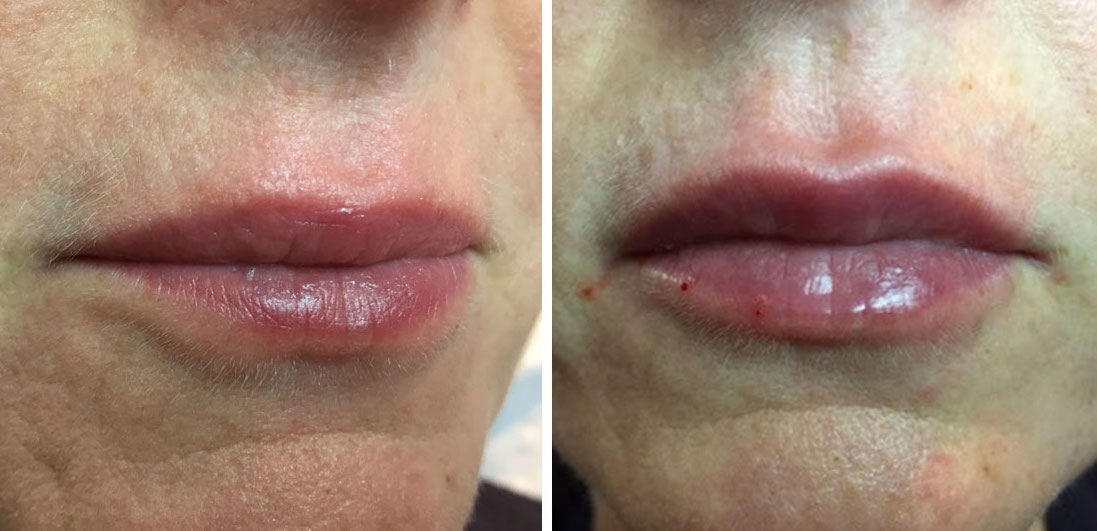 Renew Medical Aesthetics, Dermal Fillers 4D Lips treatment