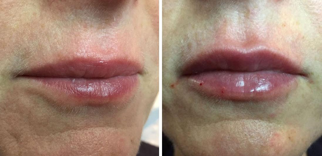 Renew Medical Aesthetics, Dermal Fillers 4D Lips treatment