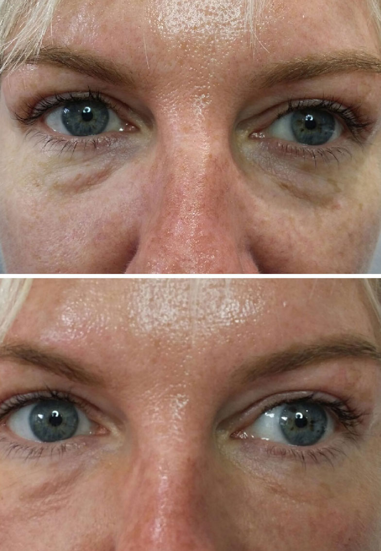 Renew Medical Aesthetics, tear trough revuvenation, under eyes